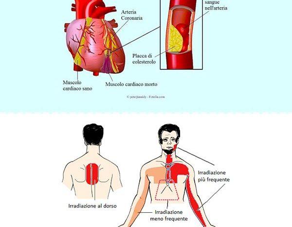 cardiochirurgia - di bari dottore