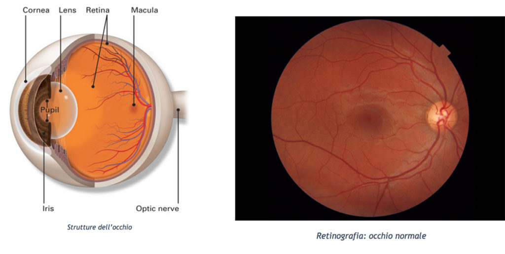 maculopatia